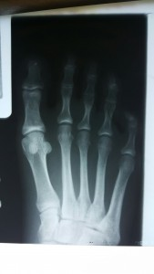 4th proximal phalanx fracture